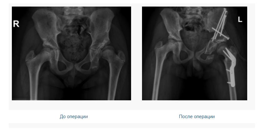В Чебоксарах были проведены 3 операции под руководством Павла Игоревича Бортулёва