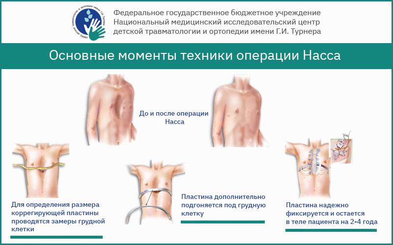 операция насса, операция по нассу